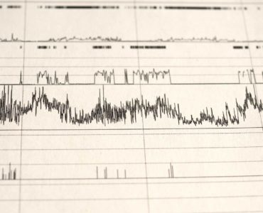 Data from a polysomnography performed in a split-night sleep study.